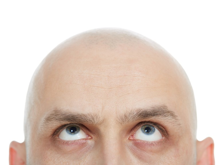 Bald men don't buy shampoo, and other lessons in loyalty